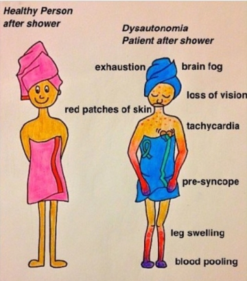 dysautonomia shower graphic