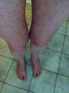 livedo reticularis legs